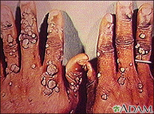 Warts, multiple - on hands