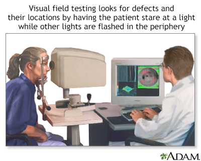 Visual field test