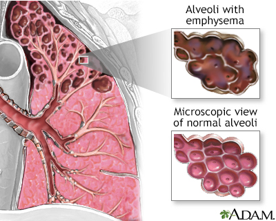 An illustration of the lung's air sacs (alveoli), with and without emphysem.