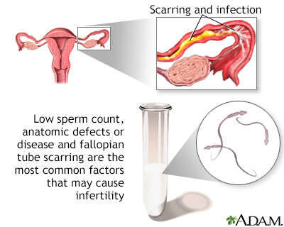 Infertility Factors