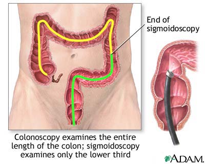 Tests for colon cancer