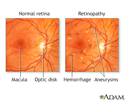 Diabetic retinopathy