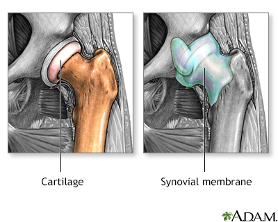 Osteoarthritis vs. rheumatoid arthritis