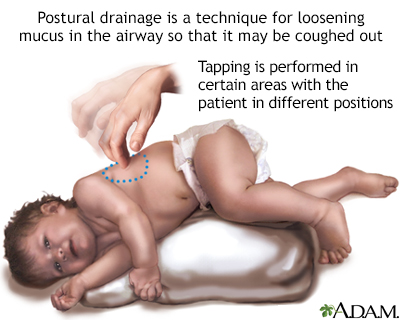 Postural drainage