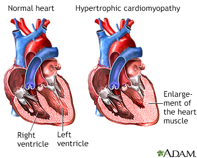 Hypertrophic cardiomyopathy