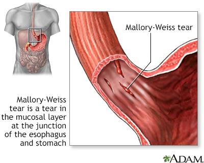 Mallory-Weiss Tear