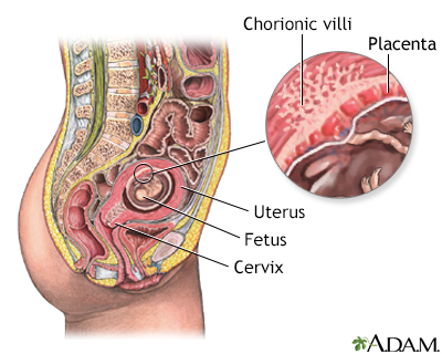 Chorionic Villus Sampling