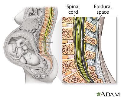 Procedure - Epidural 1