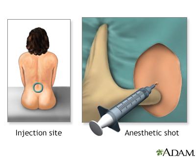 Procedure - Epidural 3