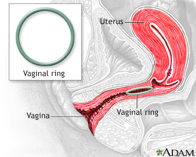Vaginal ring
