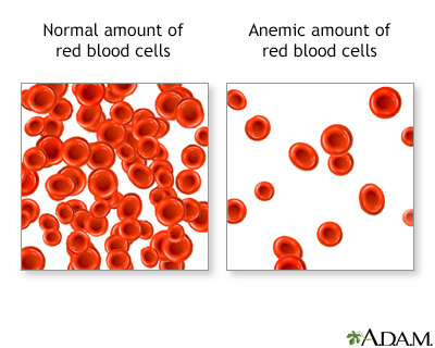 Red Blood Cells and Anemia