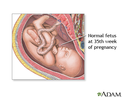 35 Week Old Fetus