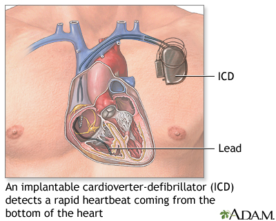 Implantable cardioverter-defibrillator