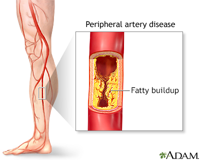 Peripheral artery disease (PAD)
