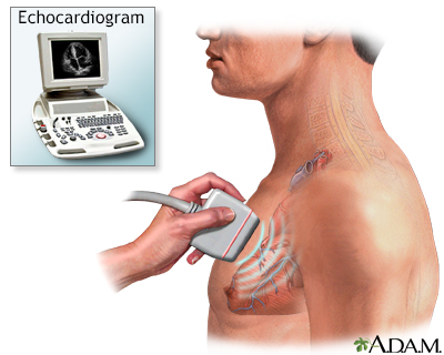 Echocardiogram
