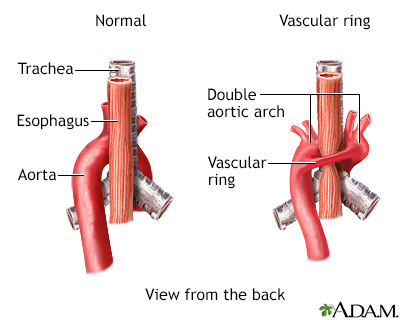 Vascular ring