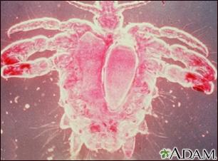Crab louse, female