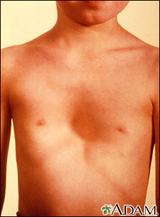 Link to the pectus excavatum image and description in our Health Library (Page opens a new window).