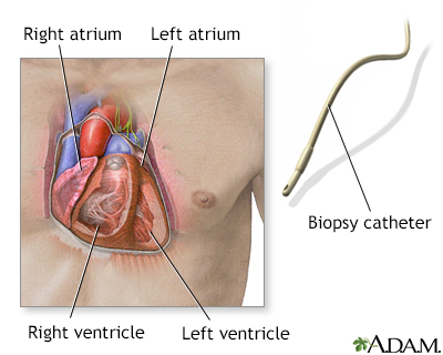 Biopsy catheter