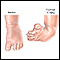 Club foot repair  - series