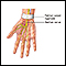 Carpal tunnel repair - series