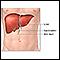 Liver transplant - series