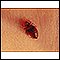 Bedbug - close-up