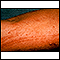 Poison oak rash on the arm