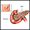 Pancreas transplant - series