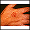 Bowen's disease on the hand