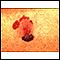 Skin cancer, malignant melanoma