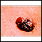 Skin cancer, raised multi-color melanoma