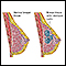 Fibrocystic breast disease