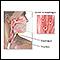 Herpetic esophagitis