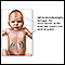 Neonatal adrenoleukodystrophy