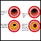 Developmental process of atherosclerosis