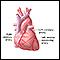 Heart bypass surgery - series