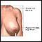 Breast reduction (mammoplasty) - series