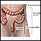 Ulcerative colitis