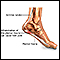 Plantar fasciitis