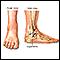 Ankle sprain - series