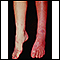 Sturge-Weber syndrome - legs