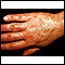 Vasculitis, urticarial on the hand