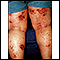 Dermatitis, atopic on the legs