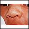 Milia - nose