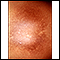 Post-inflammatory hyperpigmentation 2