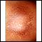 Post-inflammatory hyperpigmentation 2