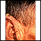 Actinic keratosis - ear