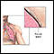 Chest tube insertion  - series