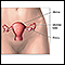 Hysterectomy  - series